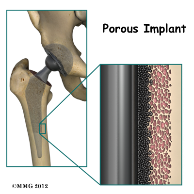 hip replacement implants market global