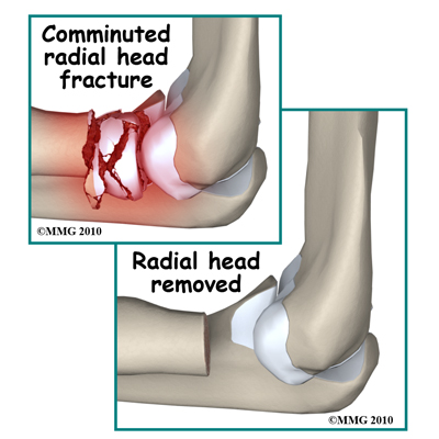 adult_elbow_fx_radial_head_excision