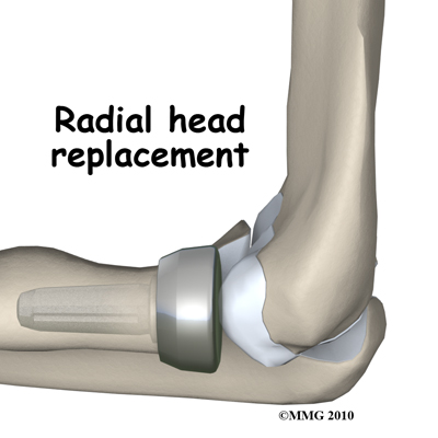 adult_elbow_fx_radial_head_replacement