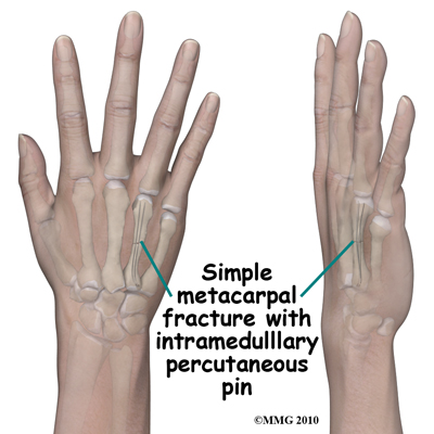 adult_finger_fx_IM_metacarpal