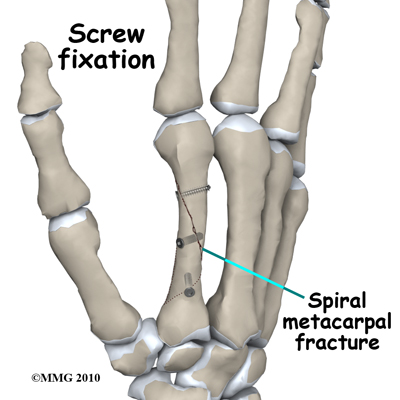 adult_finger_fx_metacarpal_screws
