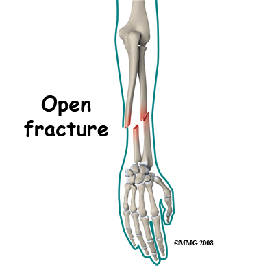 Central Orthopedic Groupadult Forearm Fractures Central Orthopedic