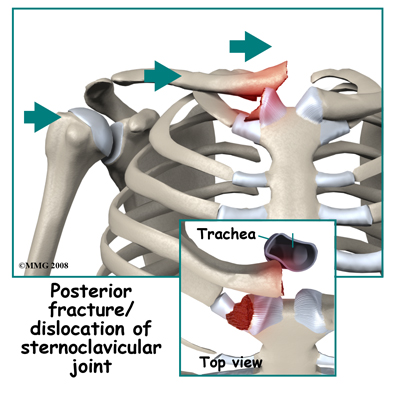 adult_shoulder_fx_type_scjoint_posterior_fxdislocate