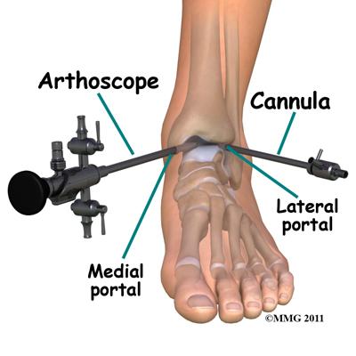 ankle_arthroscopy_portals