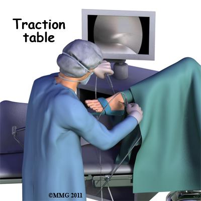 ankle_arthroscopy_traction_table