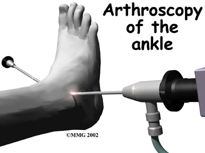 ankle_fusion_surgery01