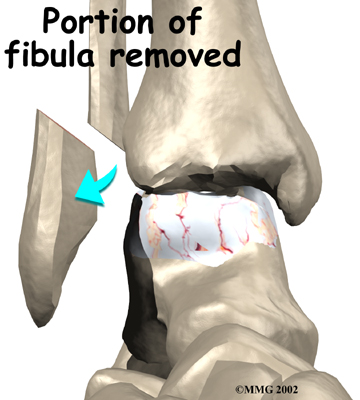 ankle_fusion_surgery02