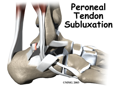 ankle_peroneal_sublux_intro01