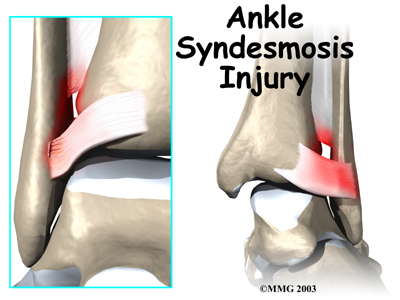 ankle_syndesmosis_intro01