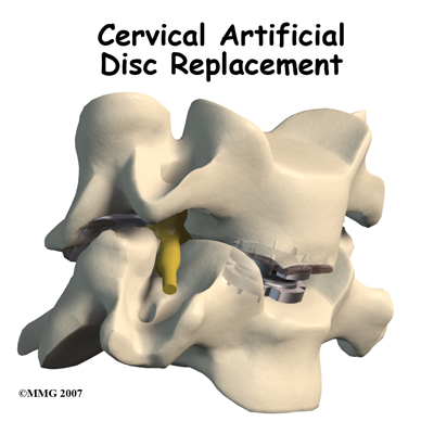 cervical_ADR_intro01