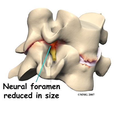 cervical_ADR_rationale02