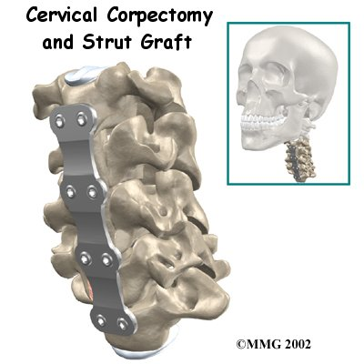 cervical_corpectomy_strut_intro01