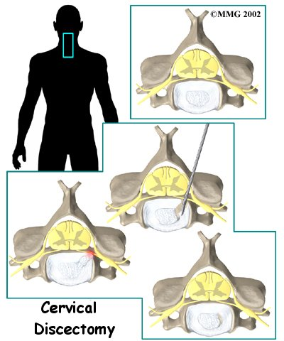 cervical_discectomy_intro01