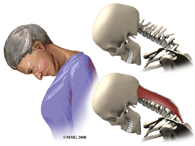 cervical_dropped_head_symptoms01