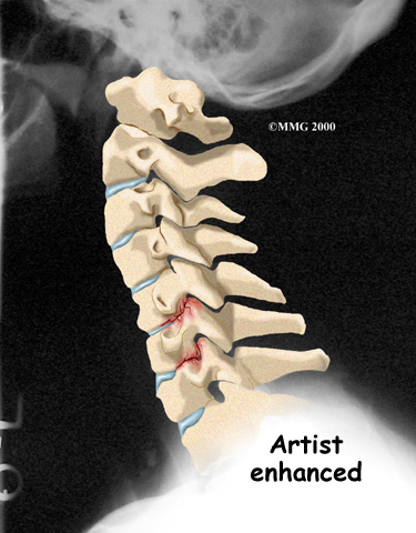 cervical_radiculopathy_diagnosis01_001