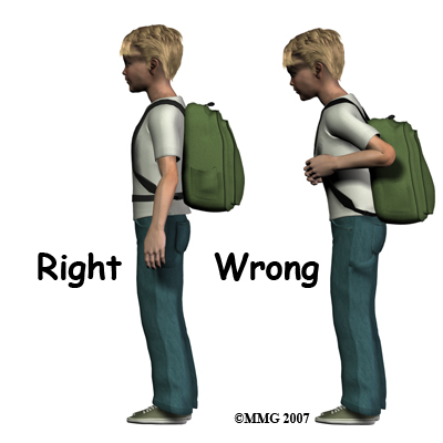 child_back_pain_backpack