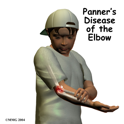child_elbow_panners_intro01
