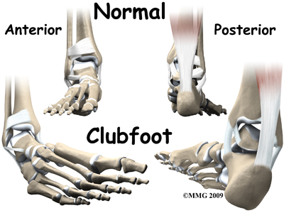 child_foot_clubfoot_causes01