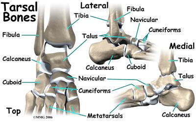 child_limp_foot_anatomy03