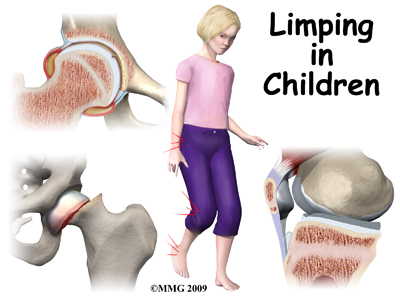 child_limping_intro01
