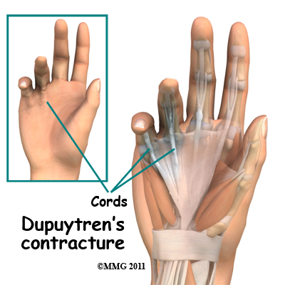 dupuytren's contracture | central orthopedic group, Skeleton