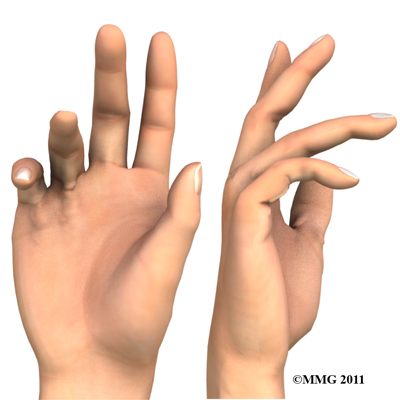dupuytrens_contracture_hands