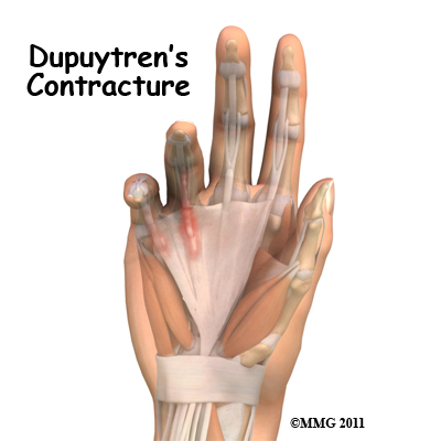 dupuytrens_contracture_new_intro