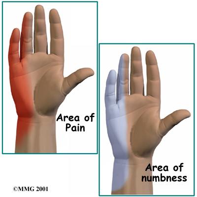 elbow_cubtun_symptom01