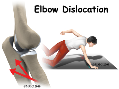 elbow_dislocation_intro01