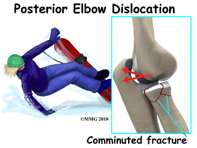 elbow_dislocation_posterior_radialhead_fx