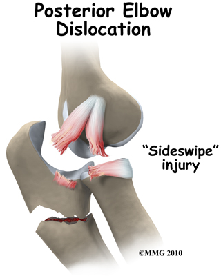 elbow_dislocation_posterior_sideswipe_fx