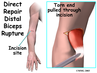 Distal Biceps Tendon Rupture Central Orthopedic Group