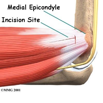 elbow_medepi_surgery01