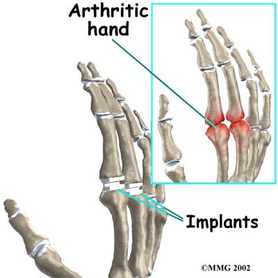 finger_arthroplasty_surg01