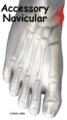 foot_accessory_navicular_intro01