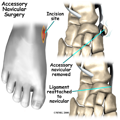 foot_accessory_navicular_treatment01
