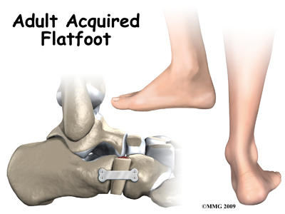 foot_acquired_flatfoot_intro01