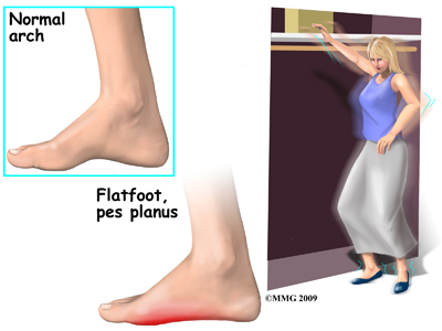 foot_acquired_flatfoot_symptoms01
