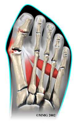 foot_bunion_causes01