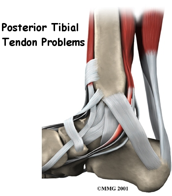 foot_posterior_tibial_tendon_intro01