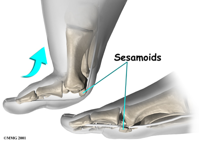 foot_sesamoiditis_anat03