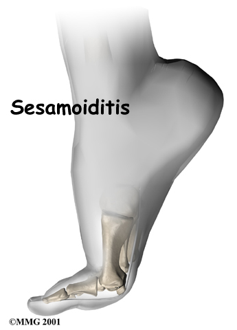 foot_sesamoiditis_intro01