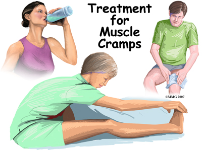 general_muscle_cramps_treatment01
