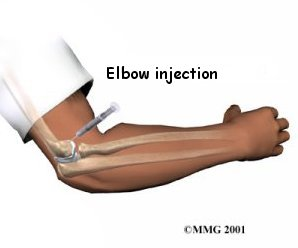 general_prp_elbow_inject