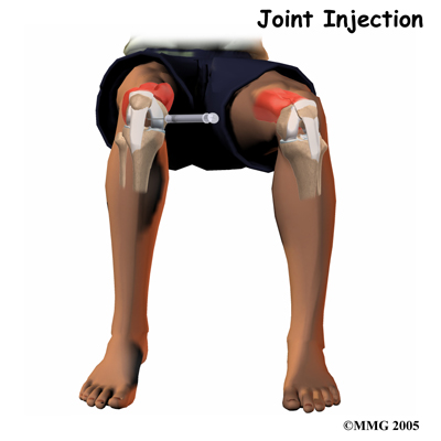 general_prp_knee_inject