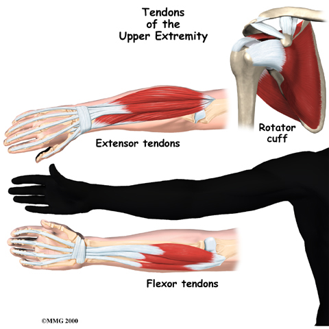 general_tendonitis_anatomy09a