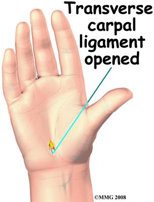 hand_carpal_tunnel_surgery03