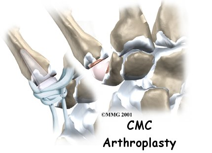 hand_cmc_arthroplasty_intro01