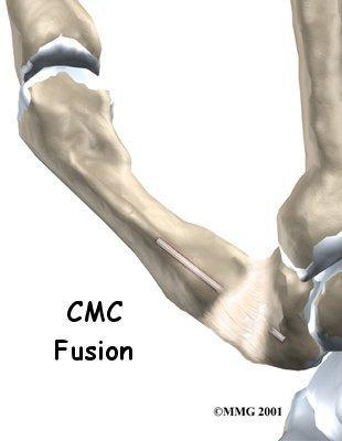 hand_cmc_fusion_intro01