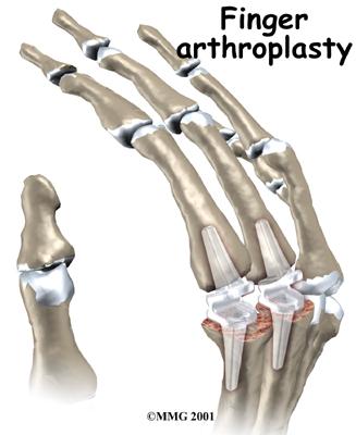 hand_finger_joint_treatment02
